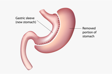 bariatrics in uae