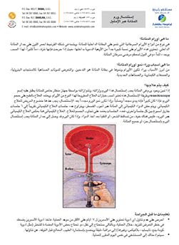https://zulekhahospitals.com/uploads/leaflets_cover/32TURBT-arabic.jpg